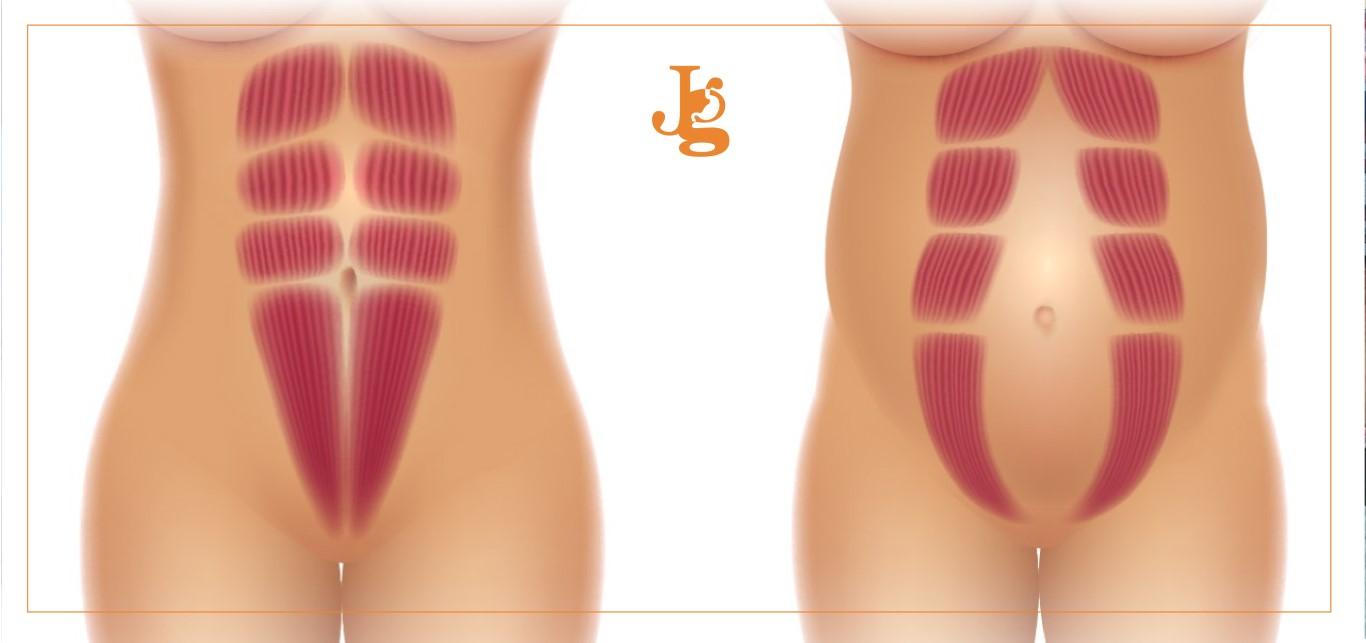 cirugia repa para músculos rectos